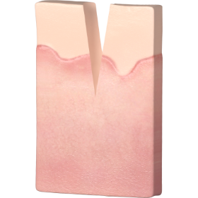 HIW_Acne Scar Removal_1