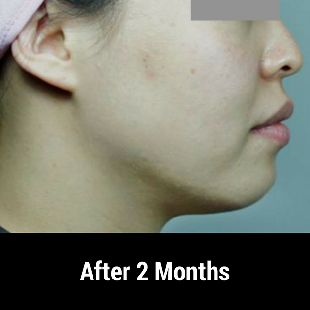 facelift after treatment 2