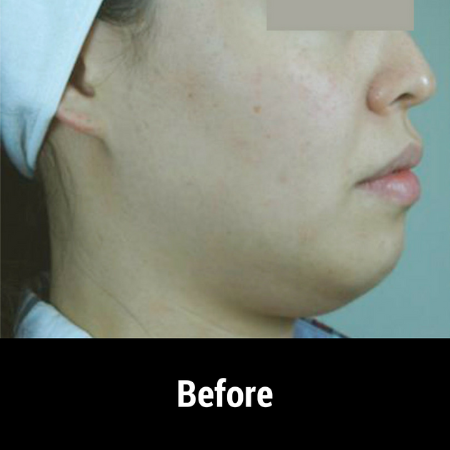 facelift before treatment 2